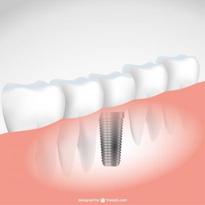 nombre de dents manquantes et nombre d 39 implants dentaires le pr saint gervais 93310. Black Bedroom Furniture Sets. Home Design Ideas
